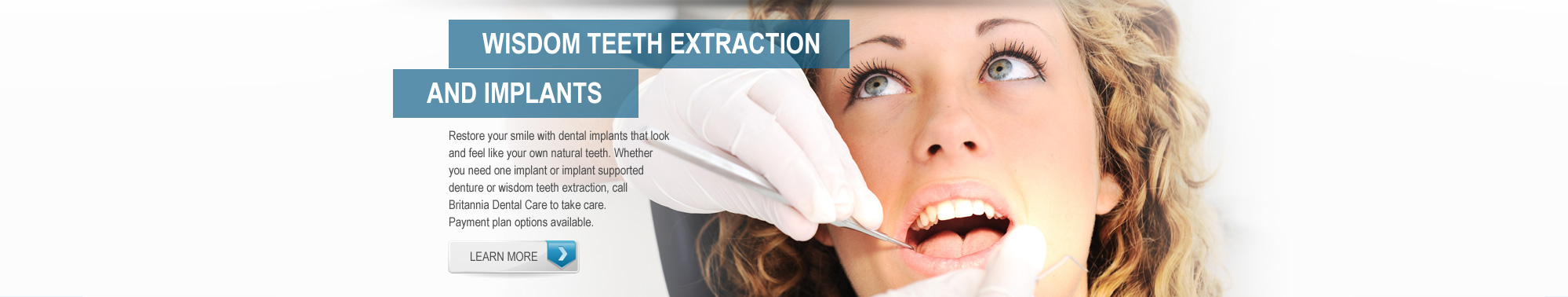 Wisdom Teeth Extraction & Implants