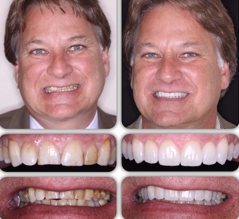 At Britannia Dental Care porcelain veneers can rejuvenate your smile to help you achieve a Hollywood smile