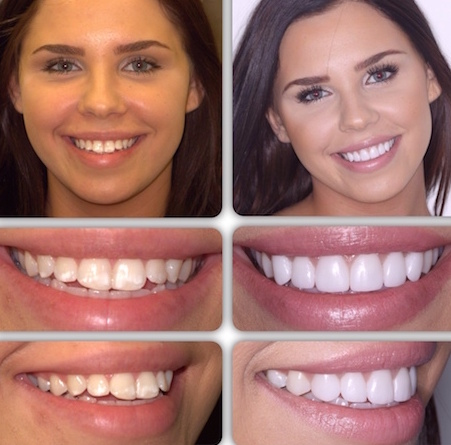 Britannia Dental Care Mississauga will help you achieve your dream smile with porcelain veneers, before and after veneers