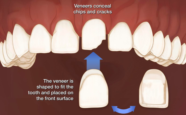 Veneers conceal chips and cracks, the veneer is shaped to fit the tooth and placed on the front surface at Britannia Dental Care