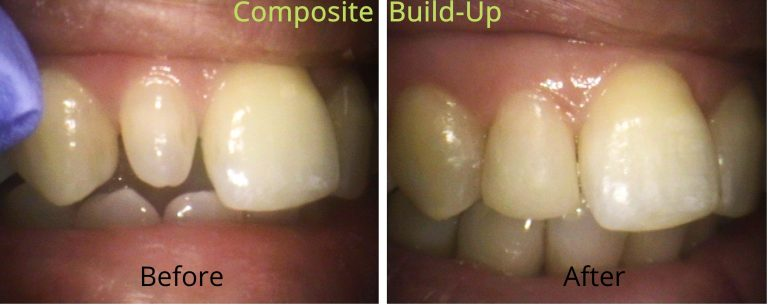 cosmetic bonding used to build up peg lateral in Britannia Dental Mississauga