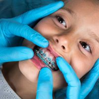 Dentist, Orthodontist examining a little girl patient's teeth